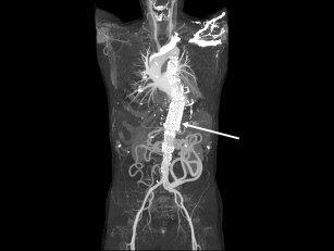 胸部 大動脈 瘤